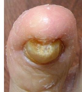 symptomer på neglesvamp