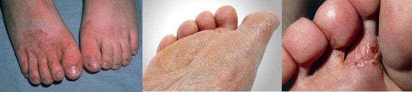 svampe infektioner i foden og tåen